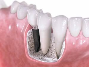 Implantes-dentales-con-cirugia